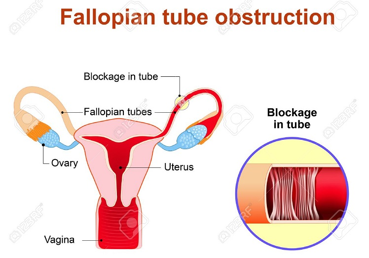 Fallopian Tube Anatomy Fallopian Tube Obstruction Or Blocked Fallopian Tubes. A Major